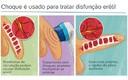 Terapia de Ondas de Choque - Shockwave