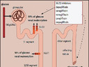 Diabetes: Inibidores SGLT2